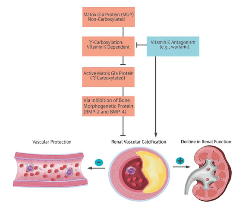 Interaction between Vitamin K & MGP (Matrix Gla Protein)