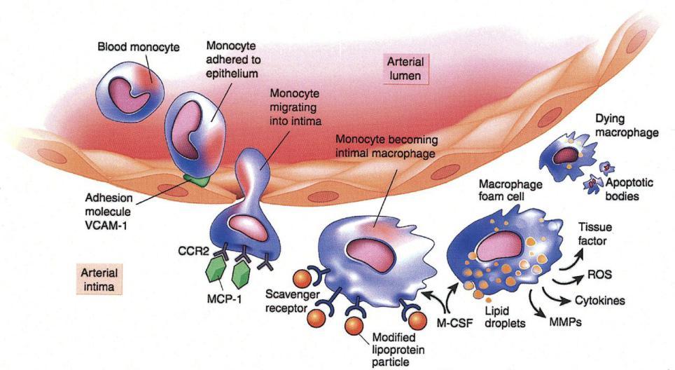 Monocyte, Macrophage, and Lp-PLA2 mechanism