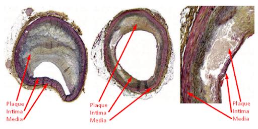 Cardiovascular Plaque