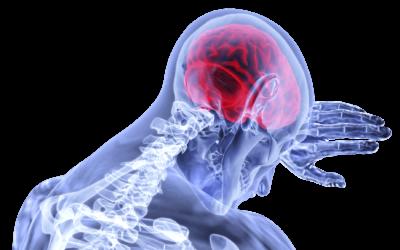 How To Prevent Stroke & Manage Atrial Fibrillation